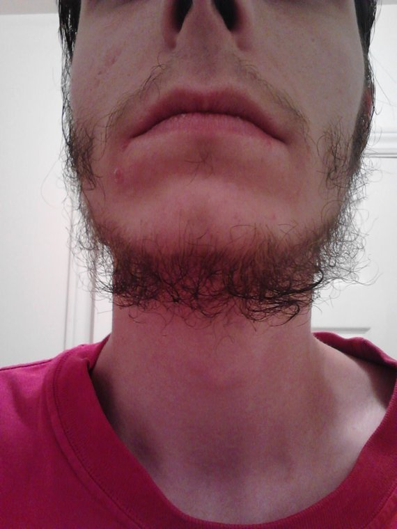how to grow a beard without ingrown hairs
