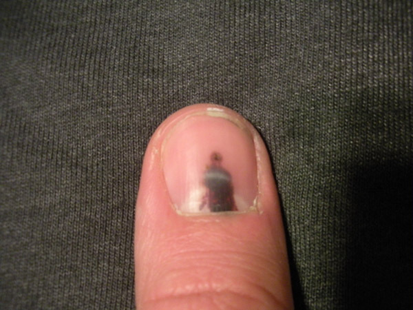 Am I going to lose my finger nail? (Now with not that gross pics at ...