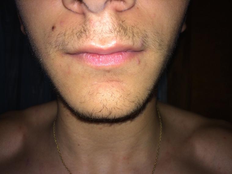 how to grow facial hair at 16