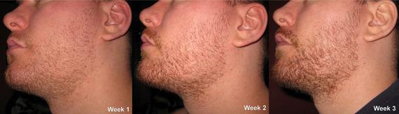 Age progression facial hair