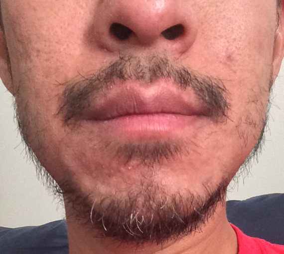 asain facial hair