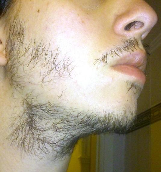 how to avoid neck beard