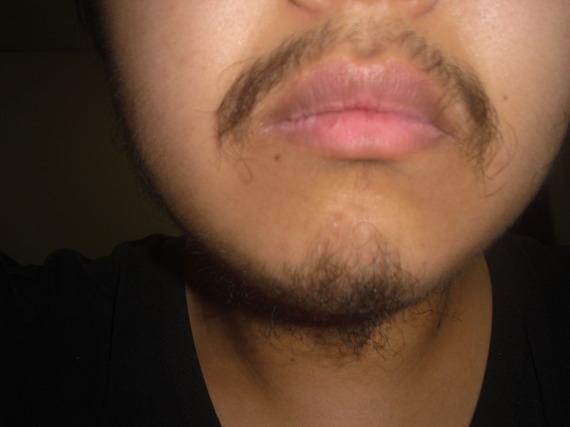 Will rogaine help me grow facial hair