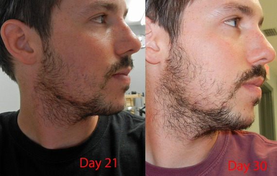 27yr Old First Beard Pics Updated Month 6 Page 4 Beard Board