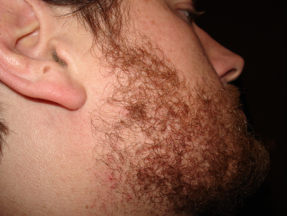 How To Grow Full Beard Without Patches