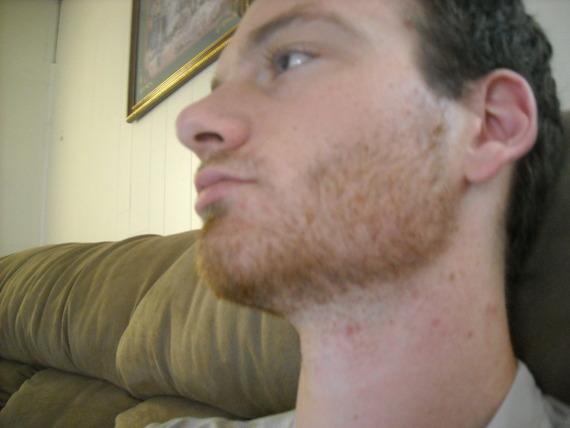 Facial hair not growing remarkable