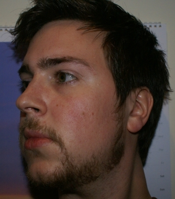 Thots minoxidil facial hair growth want