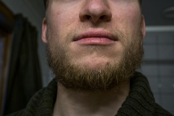 how to grow a beard at 18