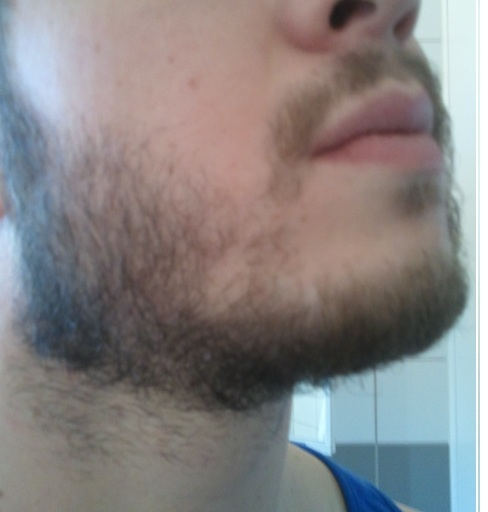 The Mustache Seems Healthy And Chin Area Neck With Exception Of Bald Spot Is Perhaps Bushiest All Sideburns Are Not Ly
