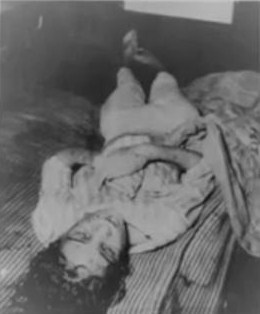 sylvia likens autopsy photos.