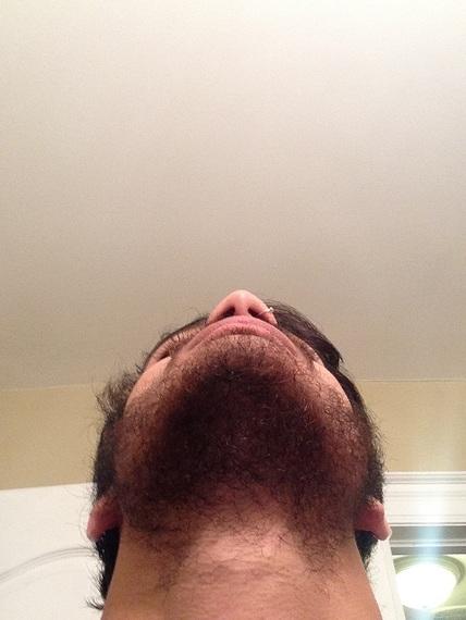 Facial hair not growing think