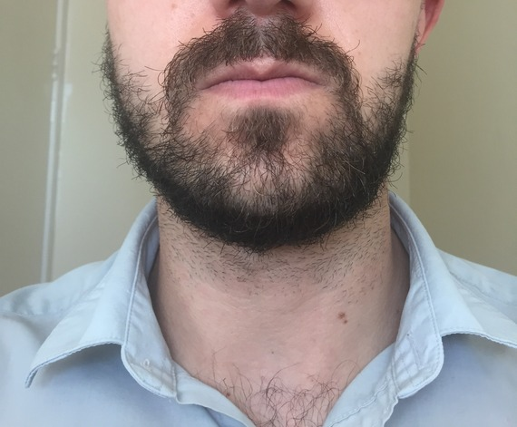 how to grow more beard on cheeks