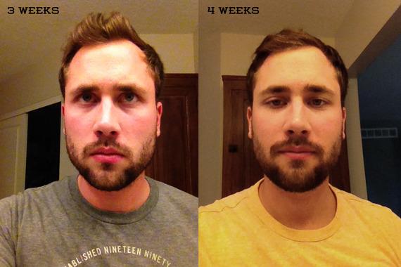 40 Week Progress Update Beard Board Classy Beard Growth Patterns