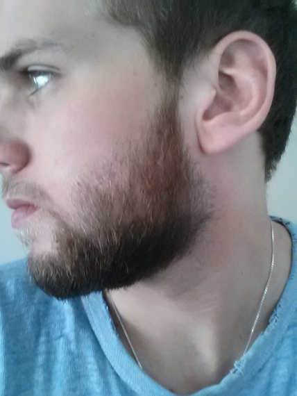 how to grow a beard fast at 18