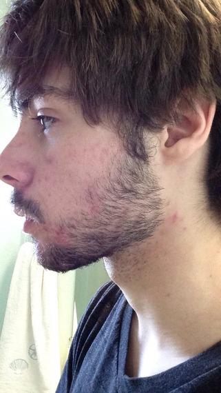 how to grow a full beard at 18