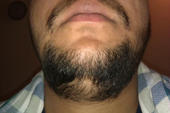 Patch of facial hair not growing
