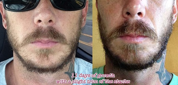 How To Grow Beard Faster Using Castor Oil Techstyle