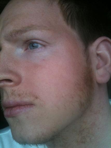 poor facial hair growth asked:
