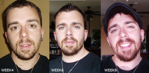 Maximize What You Have Beard Board Best Beard Growth Patterns
