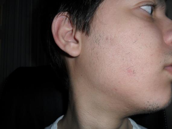 Rogaine Beard Experiment