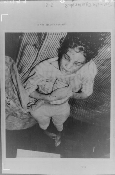 Sylvia Likens Case Pictures 21