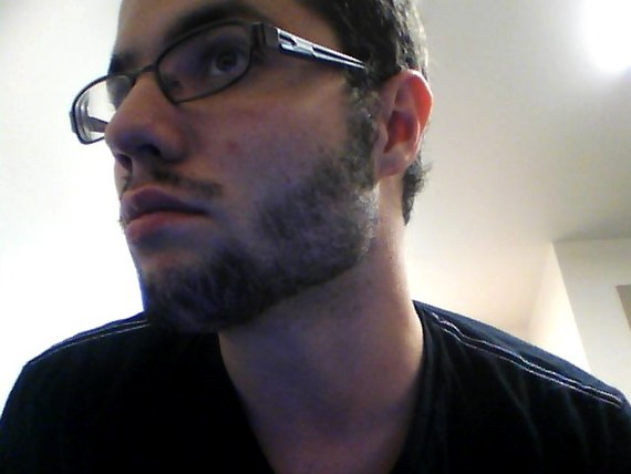 Beard Transplantation For The Guys Who Can T Grow