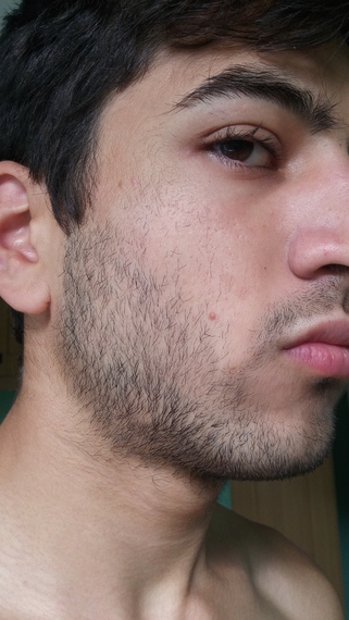 foligain beard