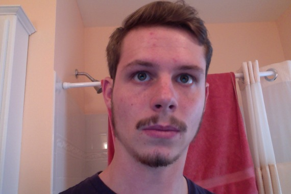 Mustache Looks Weird With Lack Of Hair On My Philtrum 21 Beard Board