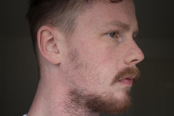 how to grow more beard on cheeks