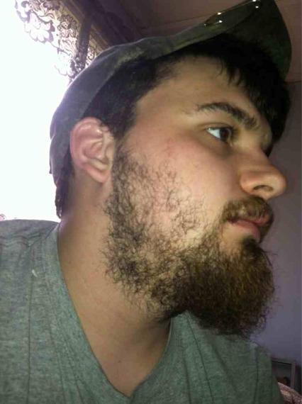 growing more facial hair
