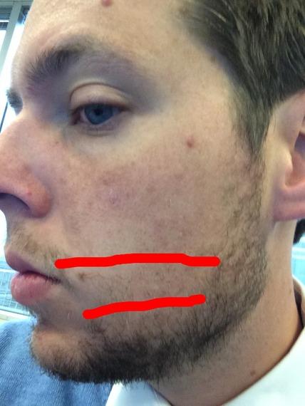 Minoxidil Beard Week 45 My Routine Fuzzfriday