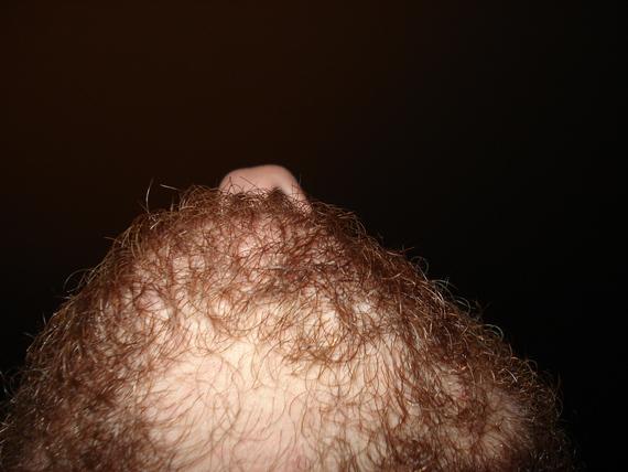 Strong Beard Bald Spot Pic