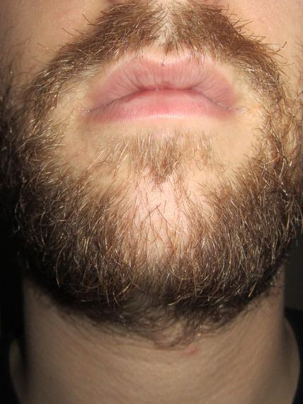 how to grow facial hair on cheeks