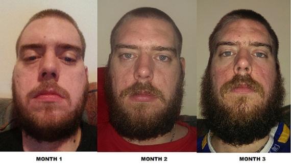 How Do I Ly Beard Oil