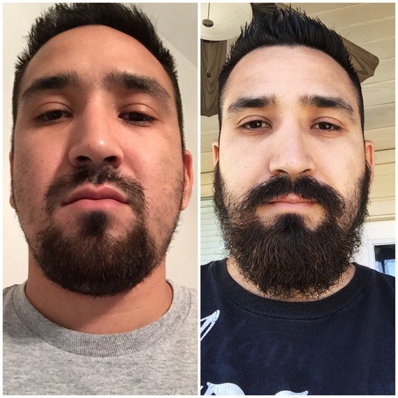 Patchy Beard Before And After Www Pixshark Com Images
