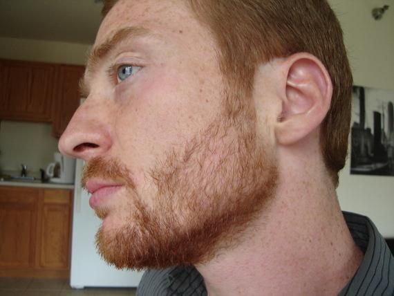 Hair propecia loss facial