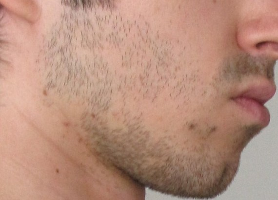 Facial hair bald patches