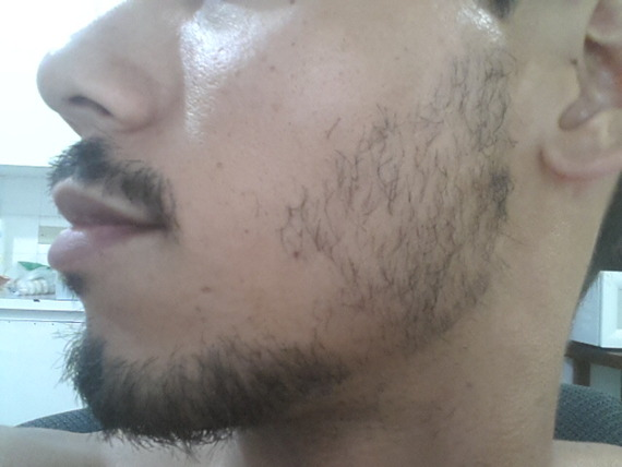 Minoxidil Beard Week 23 Connectors You