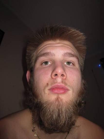 My beard stopped growing