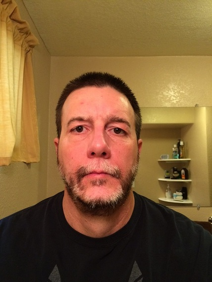 48 y.o. 1st try with color issues. (week 8 update) in Men, age 26 ...