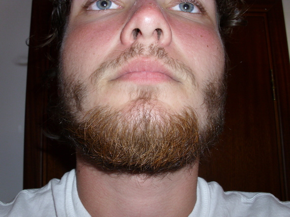 how to get beard to be fuller