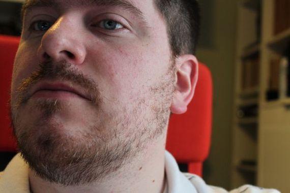 20 Optimal Receding Hairline Haircuts Full Beardgrow