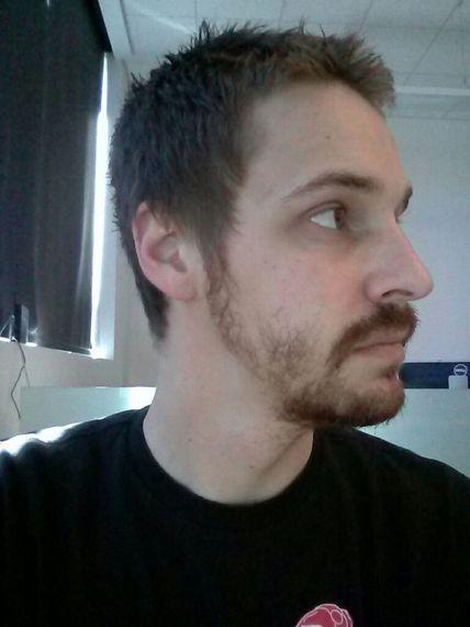 Patchy Beard Exles