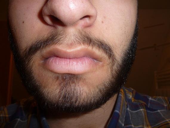 Moustache Philtrum Growth 19 Y O Beard Board