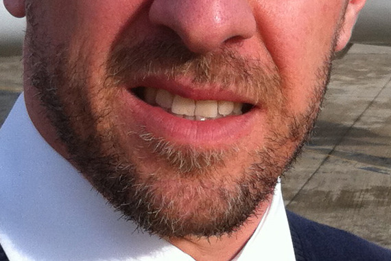 how to stop the itching of a new beard
