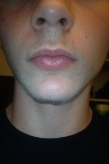 how to grow a goatee at 16