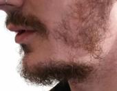 cptpatchybeard