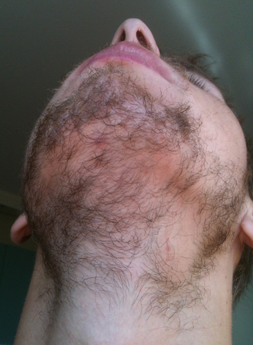 Dear Bearddit What Should I Do With The Bald Spot On My Chin