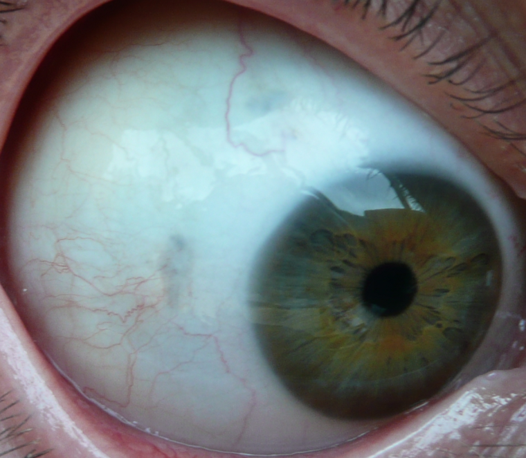 Red Spot on Eye - Possible Causes - Verywell