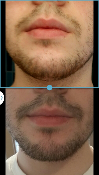 Beardilizer results before and after